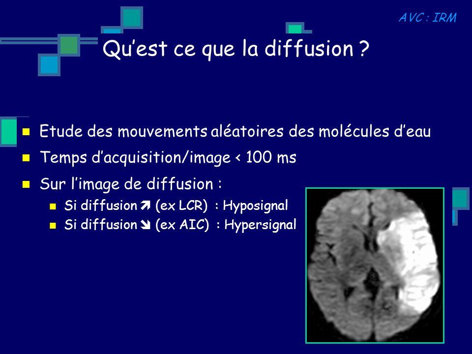 Etude des mouvements aléatoires des molécules deau Temps dacquisition/image < 100 ms Sur limage de diffusion : Si diffusion (ex LCR) : Hyposignal Si d