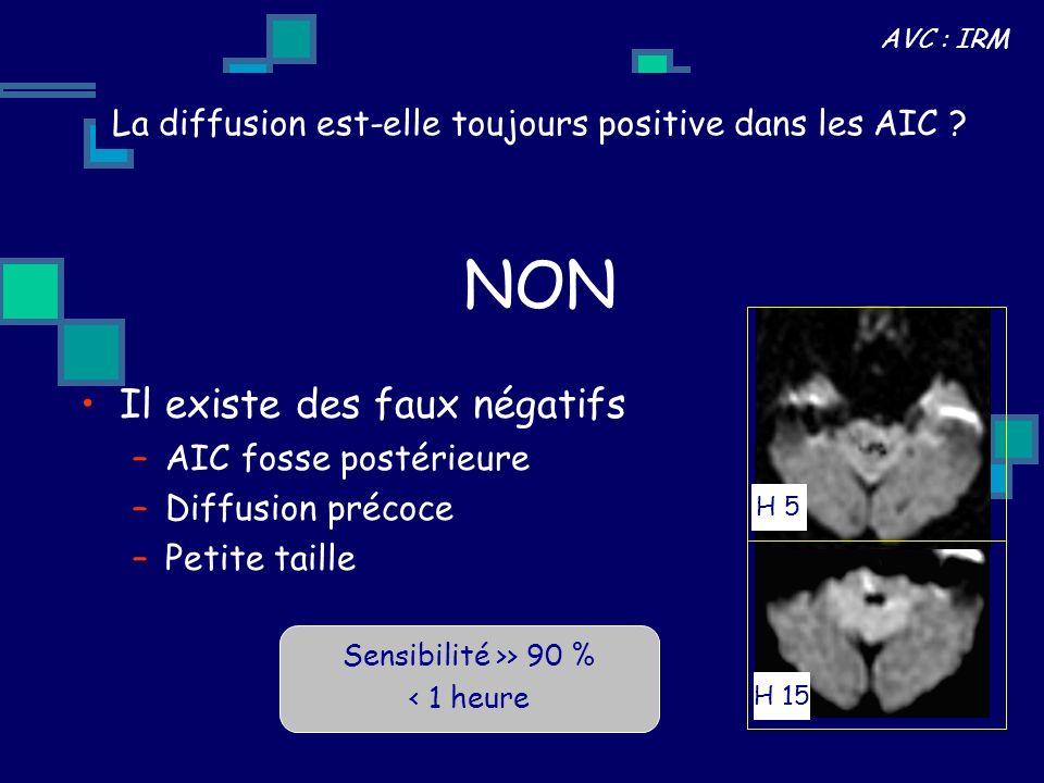 La diffusion est-elle toujours positive dans les AIC ? Il existe des faux négatifs –AIC fosse postérieure –Diffusion précoce –Petite taille NON H 5 H