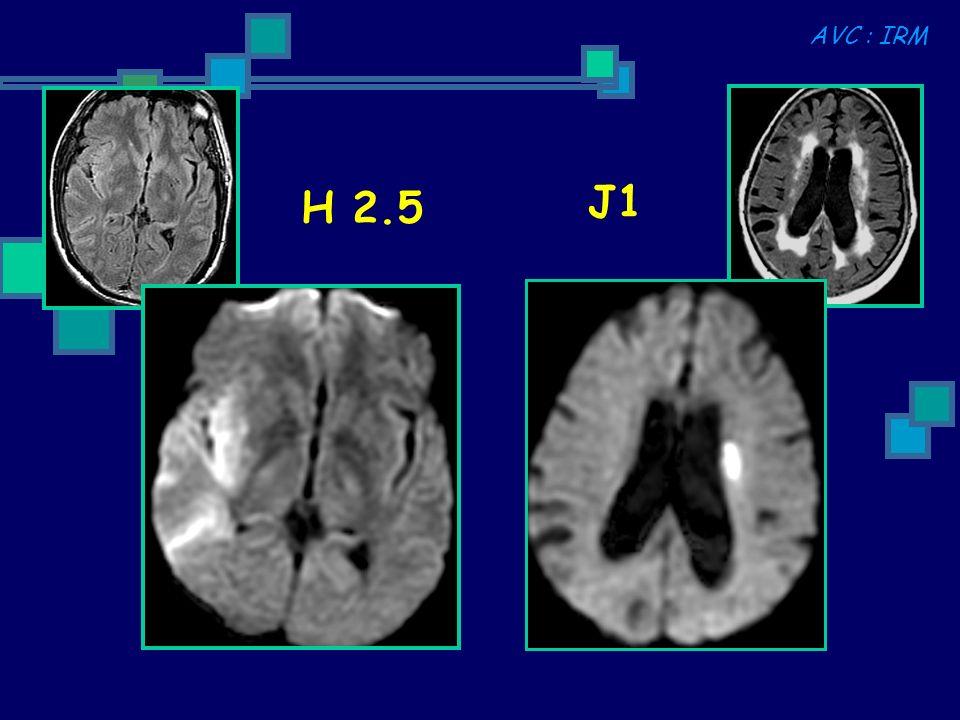 H 2.5 J1 AVC : IRM
