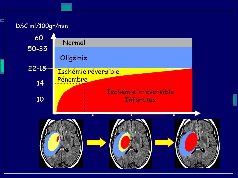 DSC ml/100gr/min Temps +3H+12H+24H 10 22-18 14 Ischémie irréversible Infarctus Ischémie réversible Pénombre Oligémie Normal 50-35 60 1H