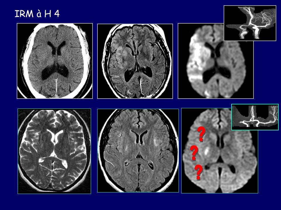 IRM à H 4