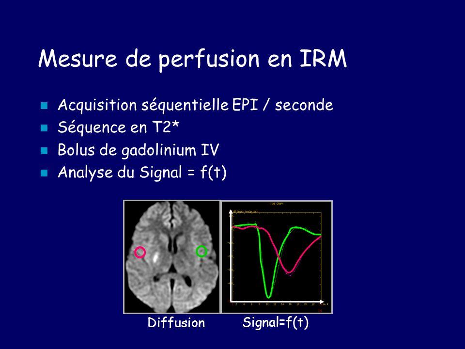 Mesure de perfusion en IRM Diffusion Signal=f(t) Acquisition séquentielle EPI / seconde Séquence en T2* Bolus de gadolinium IV Analyse du Signal = f(t