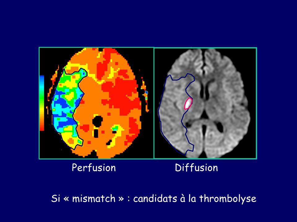«Mismatch » Perfusion / Diffusion Perfusion Diffusion Si « mismatch » : candidats à la thrombolyse