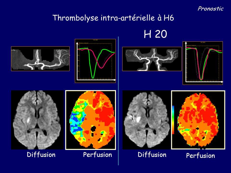 H4 Thrombolyse intra-artérielle à H6 DiffusionPerfusion H 20 Diffusion Perfusion Pronostic