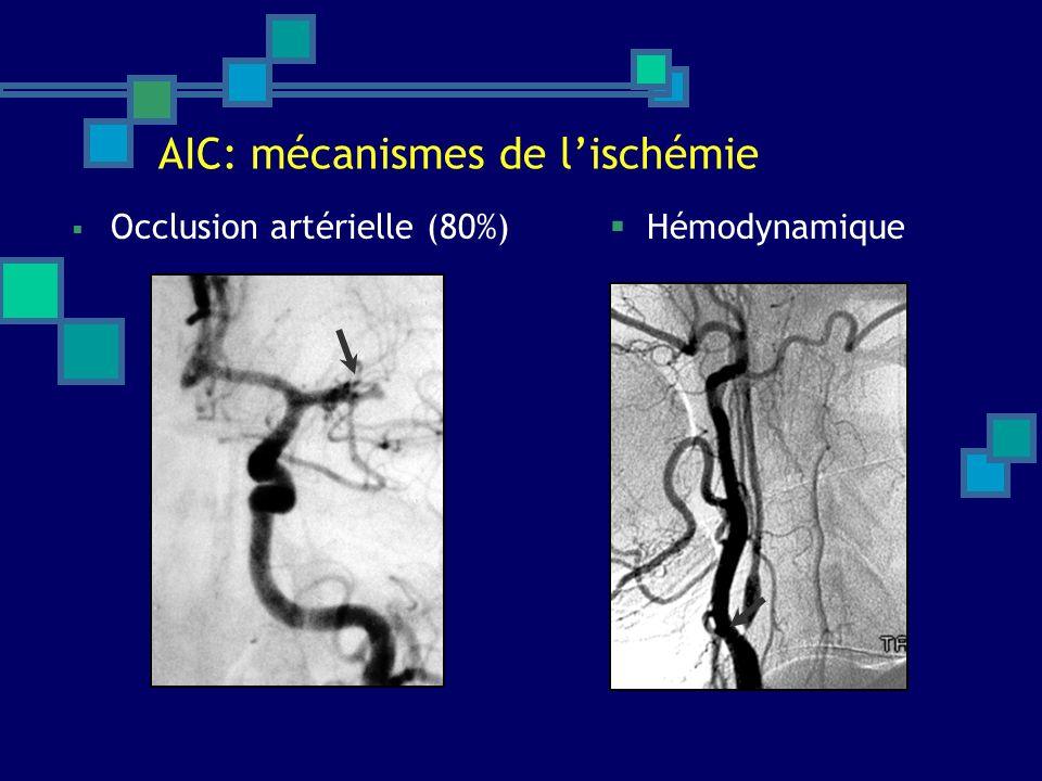 AIC: mécanismes de lischémie Occlusion artérielle (80%) Hémodynamique