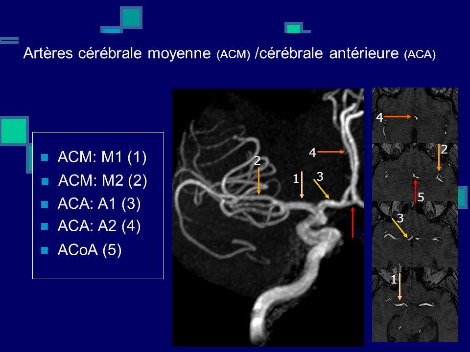 Artères cérébrale moyenne (ACM) /cérébrale antérieure (ACA) ACM: M1 (1) ACM: M2 (2) ACA: A1 (3) ACA: A2 (4) ACoA (5) 1 1 2 2 3 3 4 4 5 5