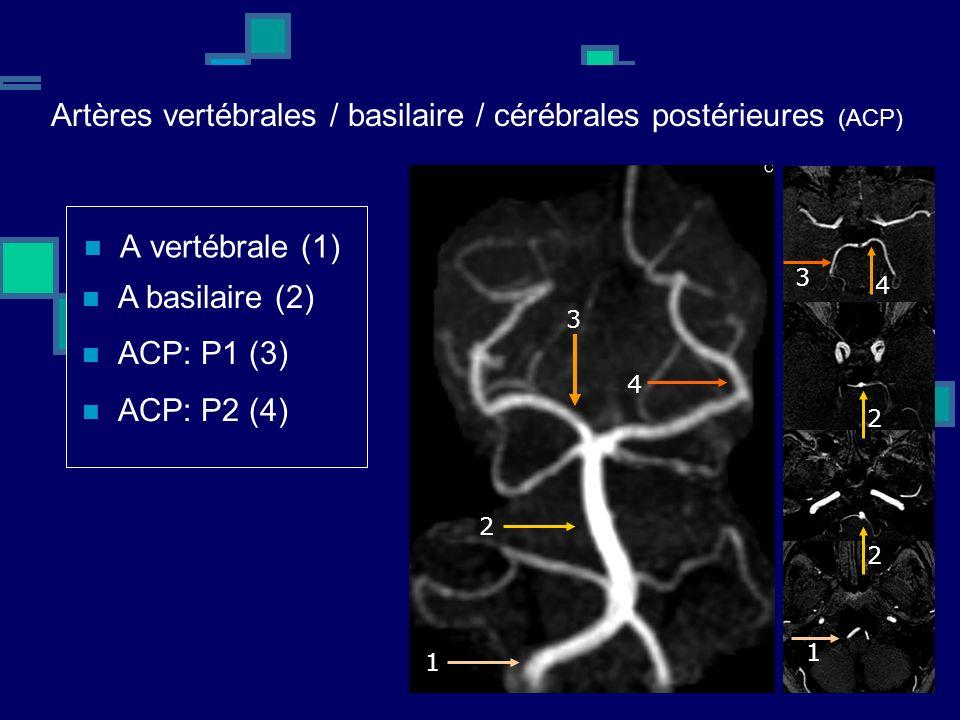 Artères vertébrales / basilaire / cérébrales postérieures (ACP) A vertébrale (1) ACP: P1 (3) ACP: P2 (4) A basilaire (2) 1 1 2 2 2 3 3 4 4
