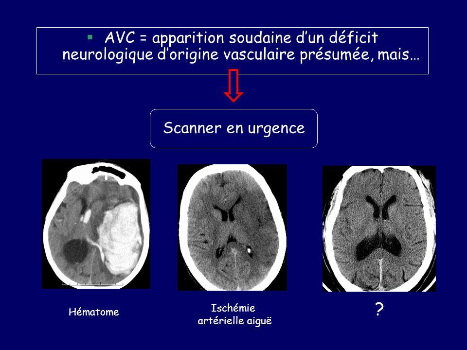 AVC = apparition soudaine dun déficit neurologique dorigine vasculaire présumée, mais… Hématome Ischémie artérielle aiguë ? Scanner en urgence