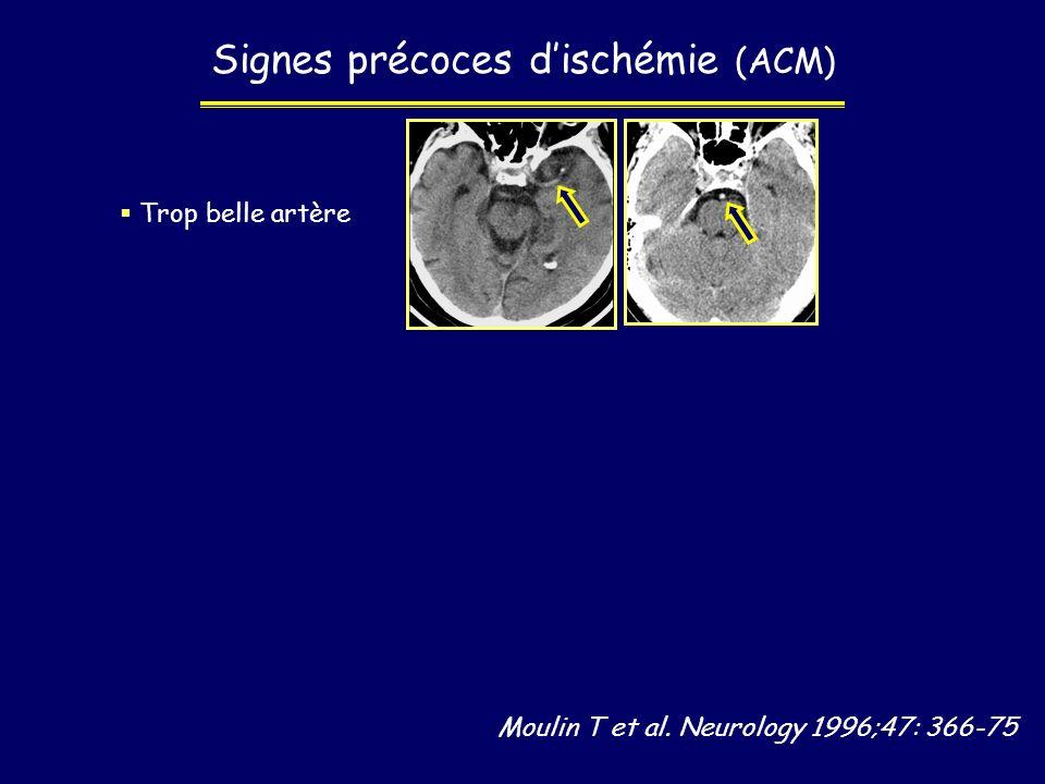 Moulin T et al. Neurology 1996;47: 366-75 Signes précoces dischémie (ACM) Trop belle artère