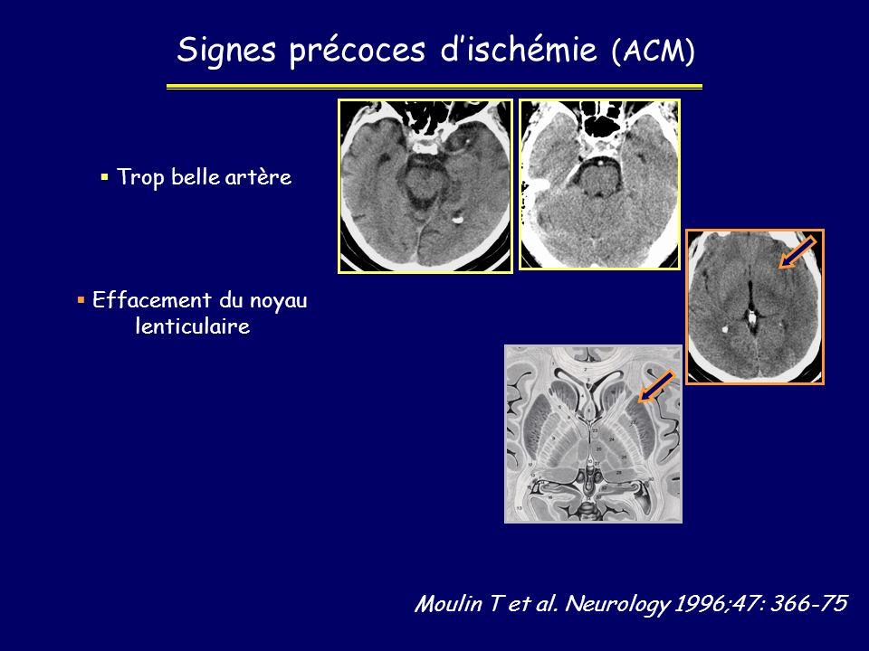 Moulin T et al. Neurology 1996;47: 366-75 Signes précoces dischémie (ACM) Trop belle artère Effacement du noyau lenticulaire
