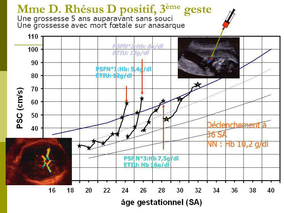 Mme D. Rhésus D positif, 3 ème geste Une grossesse 5 ans auparavant sans souci Une grossesse avec mort fœtale sur anasarque PSFN°1:Hb: 5,4g/dl ETIU: 1