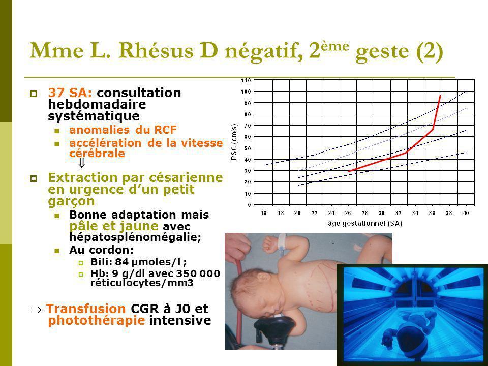 Mme L. Rhésus D négatif, 2 ème geste (2) 37 SA: consultation hebdomadaire systématique anomalies du RCF accélération de la vitesse cérébrale Extractio