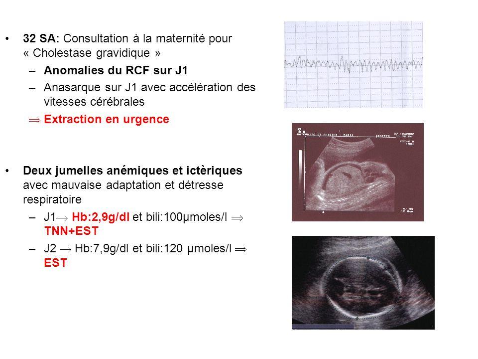 32 SA: Consultation à la maternité pour « Cholestase gravidique » –Anomalies du RCF sur J1 –Anasarque sur J1 avec accélération des vitesses cérébrales
