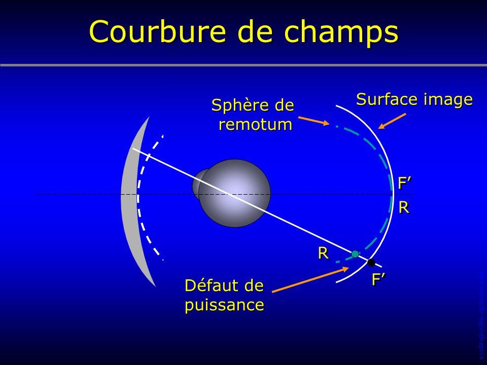 vcollin@collin-opticien.com R R F F F F R R Sphère de remotum Sphère de remotum Surface image Défaut de puissance Défaut de puissance Courbure de cham