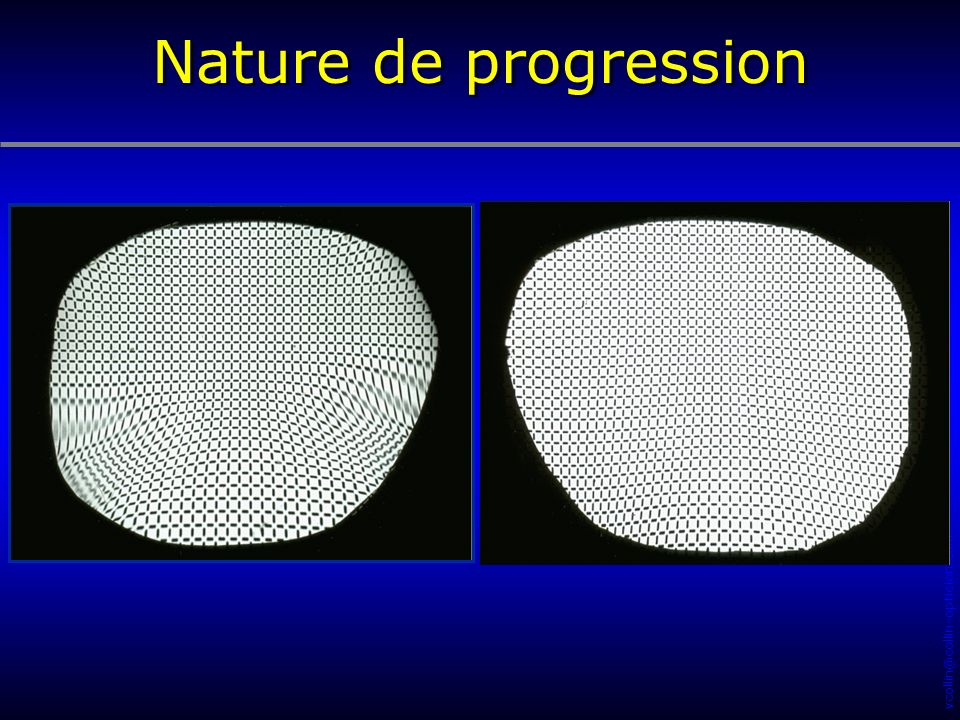 vcollin@collin-opticien.com Nature de progression
