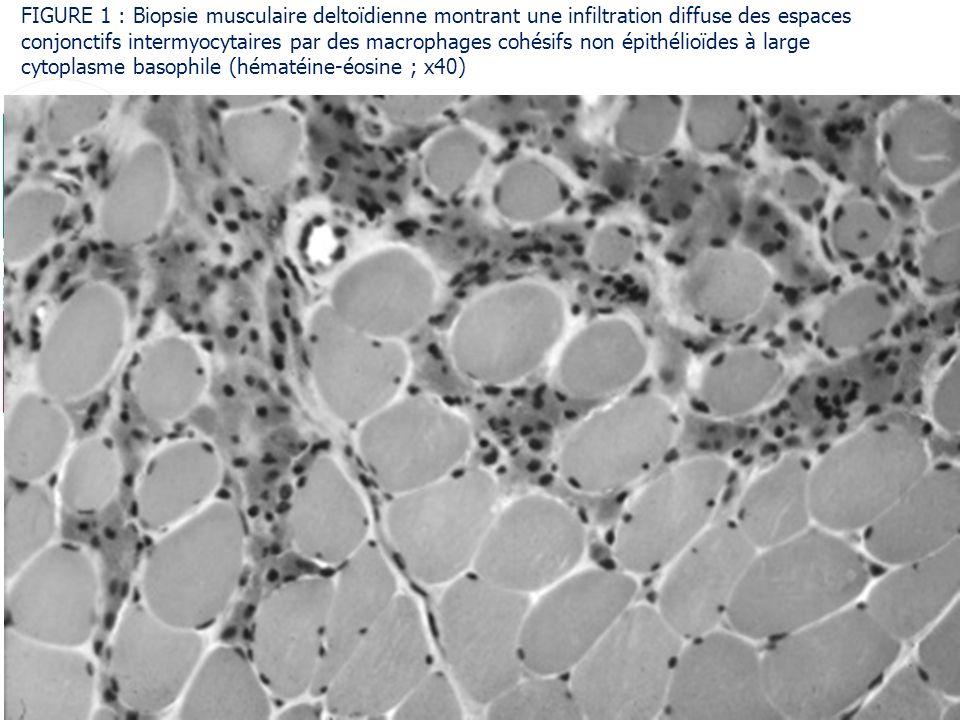 Fondation reconnue dutilité publique Pour vivre mieux, plus longtemps FIGURE 1 : Biopsie musculaire deltoïdienne montrant une infiltration diffuse des