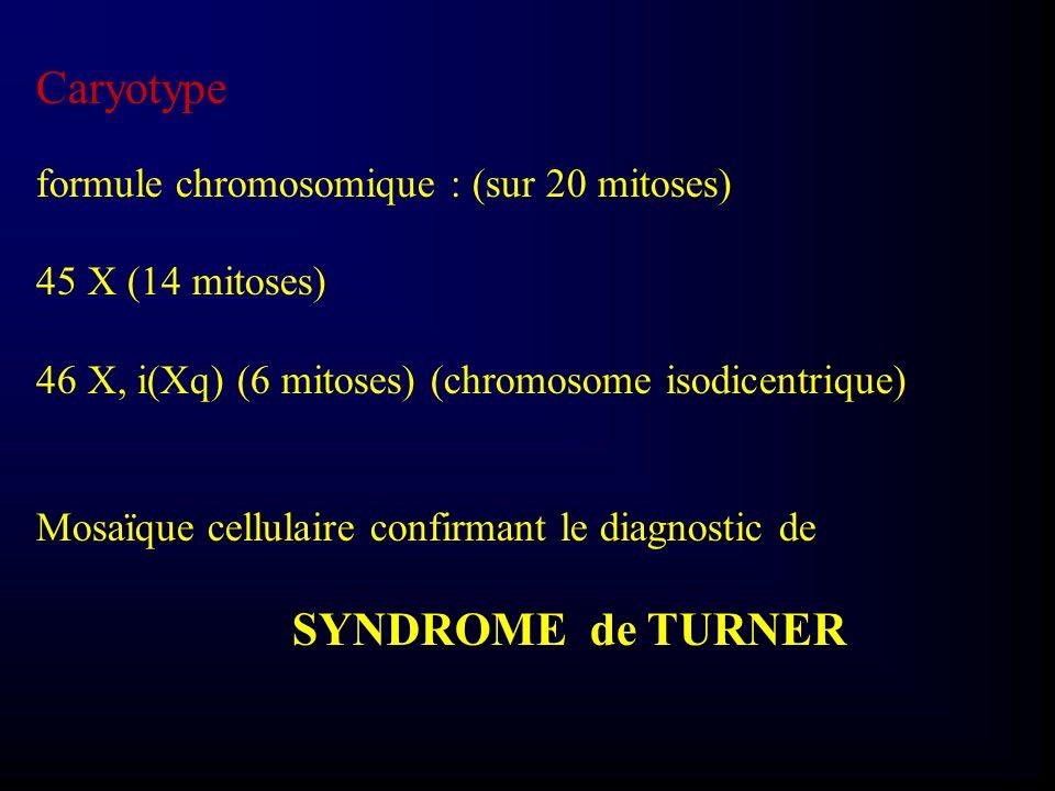Caryotype formule chromosomique : (sur 20 mitoses) 45 X (14 mitoses) 46 X, i(Xq) (6 mitoses) (chromosome isodicentrique) Mosaïque cellulaire confirman