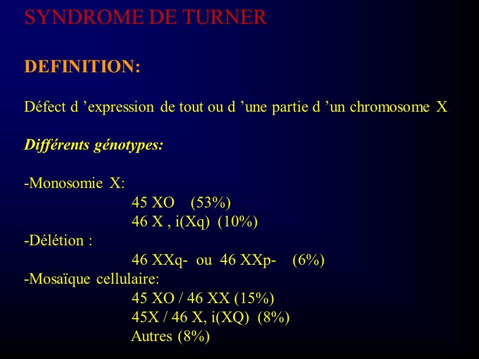 SYNDROME DE TURNER DEFINITION: Défect d expression de tout ou d une partie d un chromosome X Différents génotypes: -Monosomie X: 45 XO (53%) 46 X, i(X