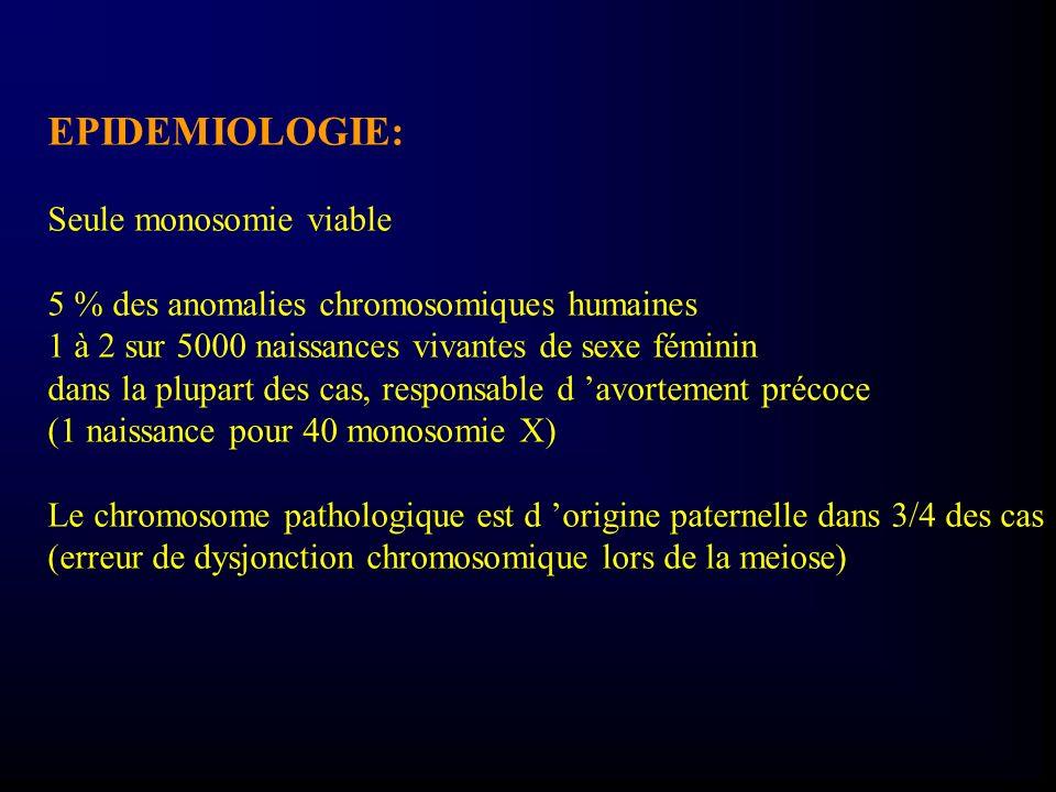 EPIDEMIOLOGIE: Seule monosomie viable 5 % des anomalies chromosomiques humaines 1 à 2 sur 5000 naissances vivantes de sexe féminin dans la plupart des