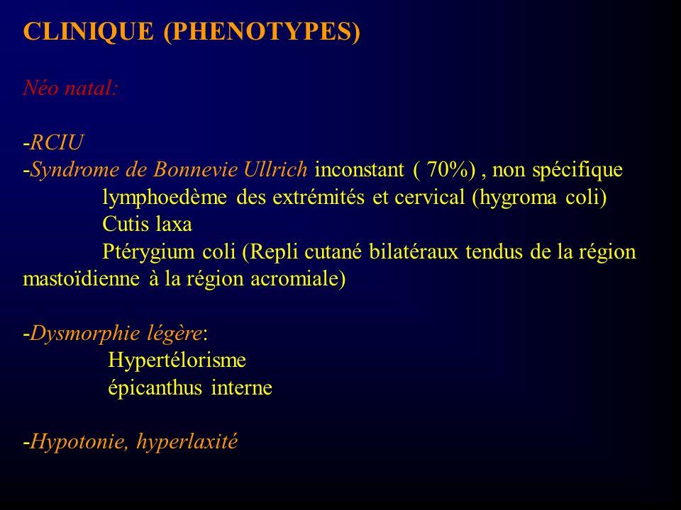 CLINIQUE (PHENOTYPES) Néo natal: -RCIU -Syndrome de Bonnevie Ullrich inconstant ( 70%), non spécifique lymphoedème des extrémités et cervical (hygroma