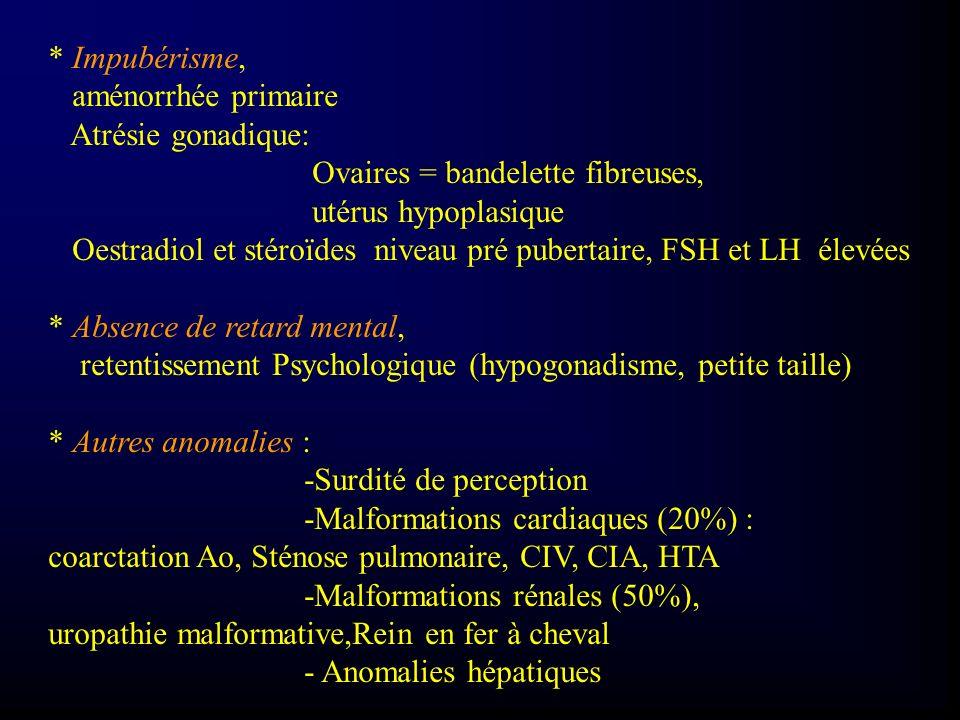 * Impubérisme, aménorrhée primaire Atrésie gonadique: Ovaires = bandelette fibreuses, utérus hypoplasique Oestradiol et stéroïdes niveau pré pubertair