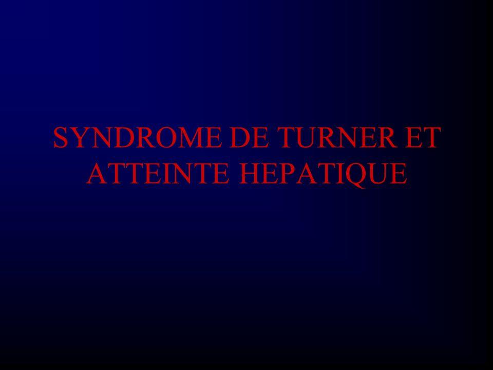 SYNDROME DE TURNER ET ATTEINTE HEPATIQUE