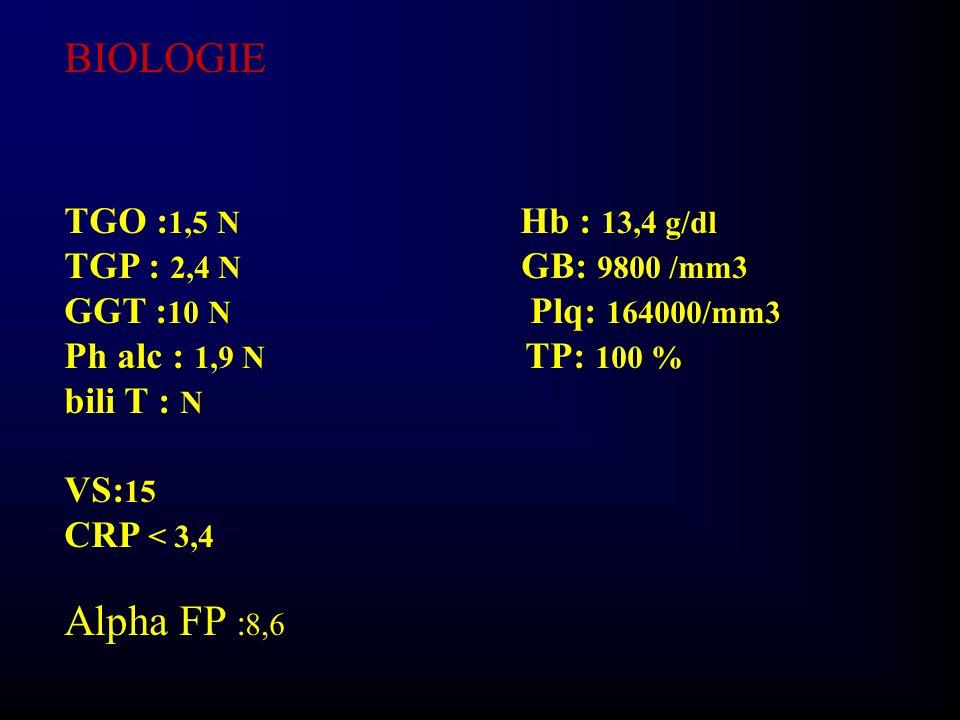 Protéines plasmatiques :76g/l EPP :N Ferritine : N Dosage pondéral des Ig : N Csat : N Alpha 1 AT : normal Cuprémie : N Ac anti nucléaires - Céruloplasmine : N Ac anti Muscle Lisse - ARN HVC - Ac anti mitochondrie - Ag HBs -, Ac anti HBc - Ac anti réticulum - Cholestérol : 2,55 g/l TG: N TSH : N Ac anti TPO -, Ac anti microsomiaux - FSH :4 N LH : 1,3N Prolactine normale