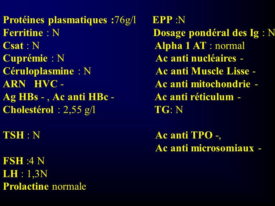 Biopsie hépatique: Sub normale, absence de signe d hépatite chronique stéatose 5%