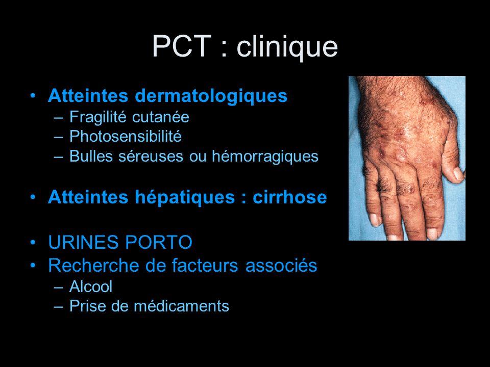 PCT : clinique Atteintes dermatologiques –Fragilité cutanée –Photosensibilité –Bulles séreuses ou hémorragiques Atteintes hépatiques : cirrhose URINES