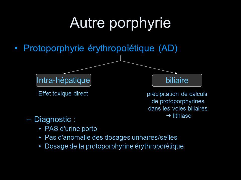 Autre porphyrie Protoporphyrie érythropoïétique (AD) –Diagnostic : PAS d'urine porto Pas d'anomalie des dosages urinaires/selles Dosage de la protopor