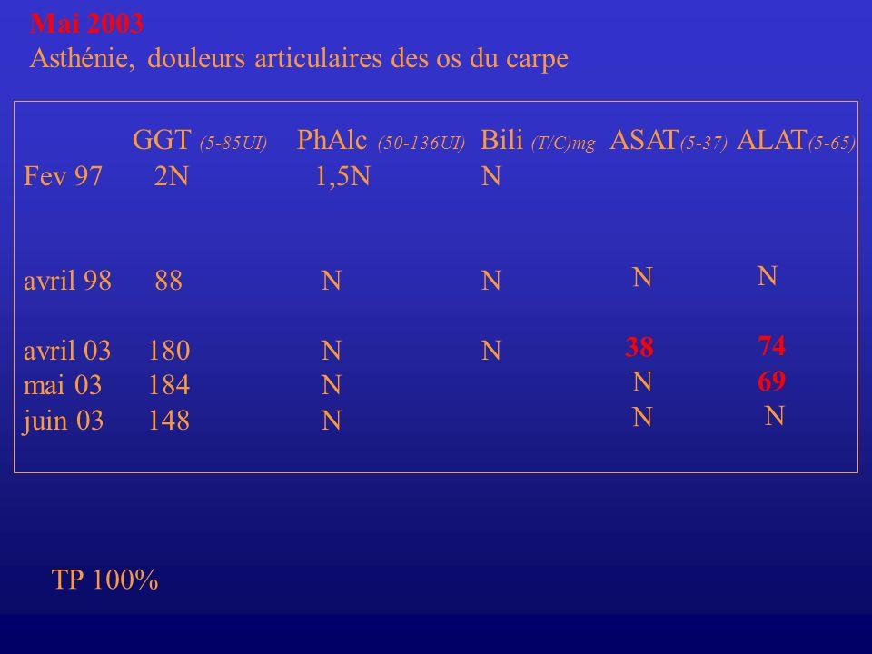 Mai 2003 Asthénie, douleurs articulaires des os du carpe Fev 97 avril 98 avril 03 mai 03 juin 03 GGT (5-85UI) PhAlc (50-136UI) Bili (T/C)mg ASAT (5-37