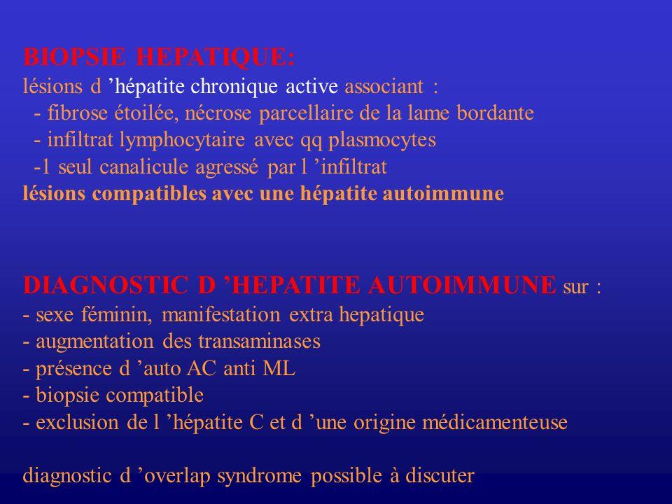 DIAGNOSTIC CLINIQUE 2 formes cliniques : -Hépatite aigue 30 % ( formes fulminante ou sub fulminante rares) -Hépatite chronique ( diagnostic tardif ) manifestations cliniques : ictère, asthénie, anorexie, aménorrhée, douleurs abdominales(10-40%) fièvre(20%) Hépatomégalie, splénomégalie (50%) cirrhose (30-80%), Ascite (10-20%), VO (20%) manifestations extra-hépatiques : (63%) Thyroïdite AI, arthropathies (transitoires), syndrome de Sjögren colite ulcéreuse, éruptions cutanées (20%) PTI, PR, Vitiligo capillarite allergique, lichen plan, ulcères de jambe, aspect cüshingoide acidose tubulaire rénale, alvéolite fibrosante, neuropathie périphérique