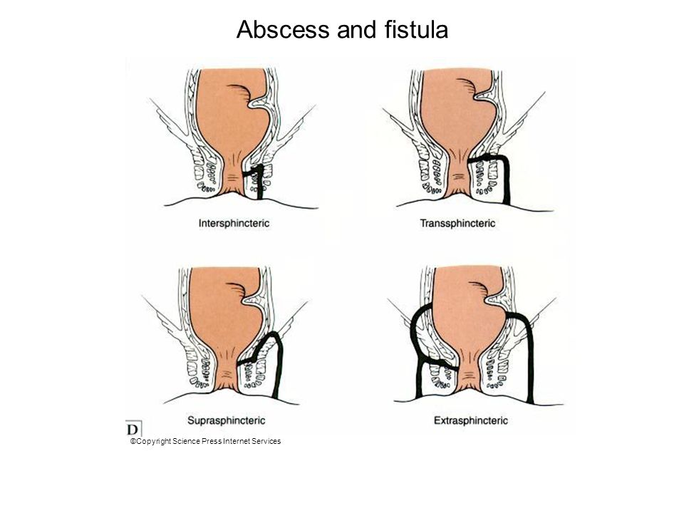Abscess and fistula ©Copyright Science Press Internet Services