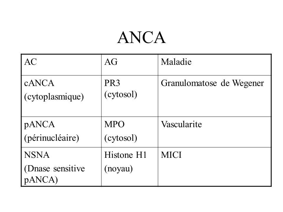 ANCA ACAGMaladie cANCA (cytoplasmique) PR3 (cytosol) Granulomatose de Wegener pANCA (périnucléaire) MPO (cytosol) Vascularite NSNA (Dnase sensitive pA