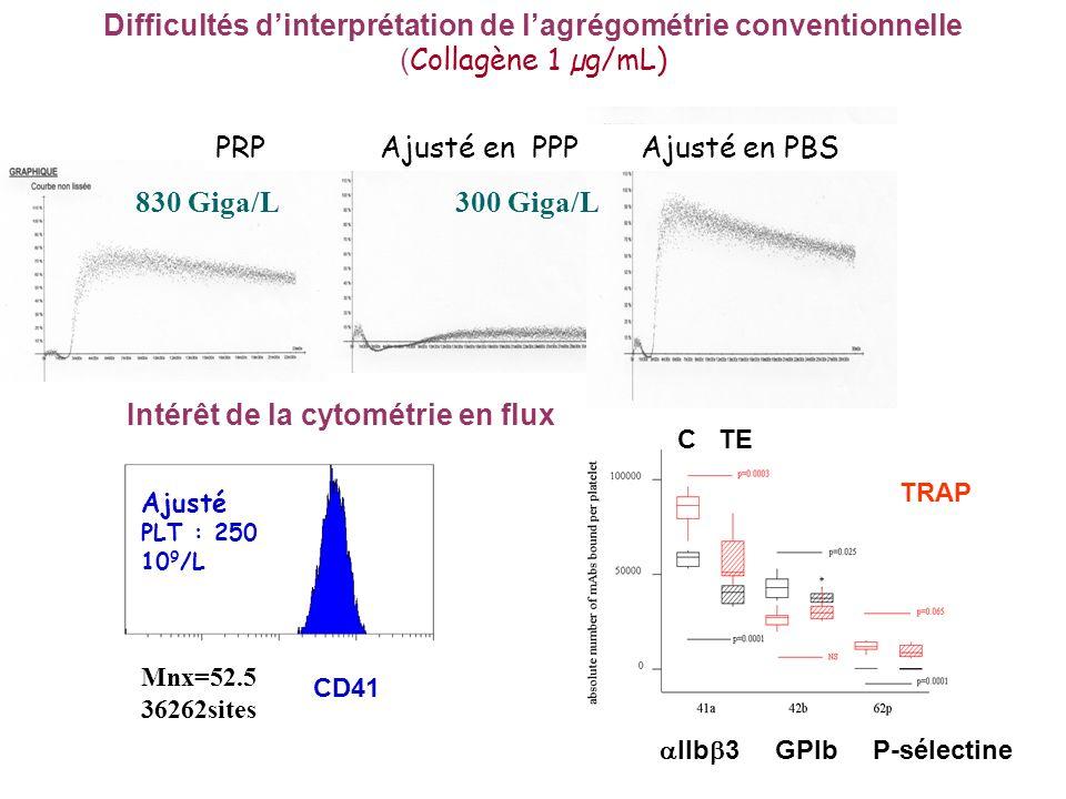 Difficultés dinterprétation de lagrégométrie conventionnelle ( Collagène 1 µg/mL) 830 Giga/L300 Giga/L PRP Ajusté en PPP Ajusté en PBS Intérêt de la cytométrie en flux Ajusté PLT : 250 10 9 /L Mnx=52.5 36262sites CD41 IIb 3 GPIbP-sélectine C TE TRAP