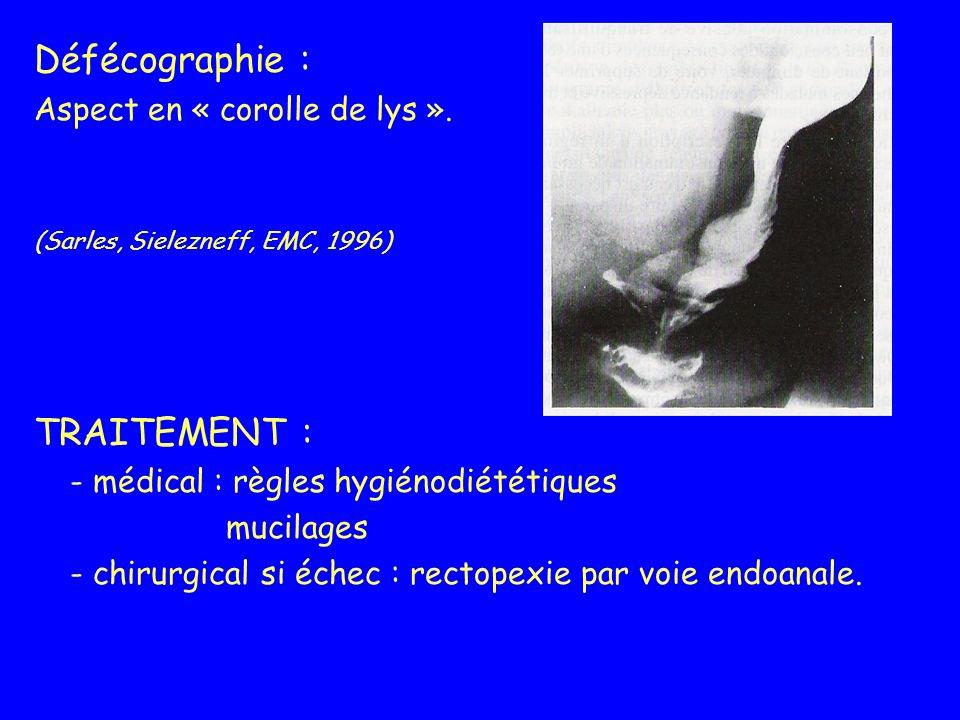 Défécographie : Aspect en « corolle de lys ». (Sarles, Sielezneff, EMC, 1996) TRAITEMENT : - médical : règles hygiénodiététiques mucilages - chirurgic