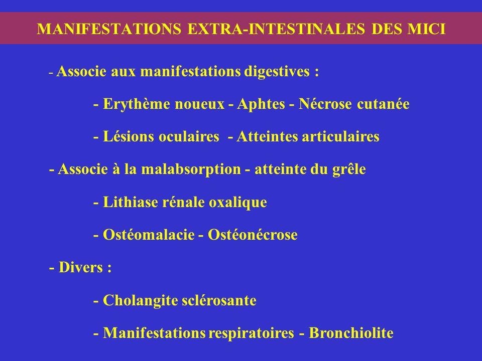 MANIFESTATIONS EXTRA-INTESTINALES DES MICI - Associe aux manifestations digestives : - Erythème noueux - Aphtes - Nécrose cutanée - Lésions oculaires