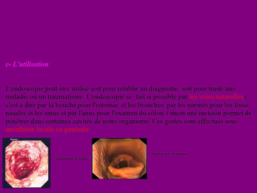 fgghnht c- L'utilisation L'endoscopie peut être utilisé soit pour rétablir un diagnostic, soit pour traité une maladie ou un traumatisme. L'endoscopie