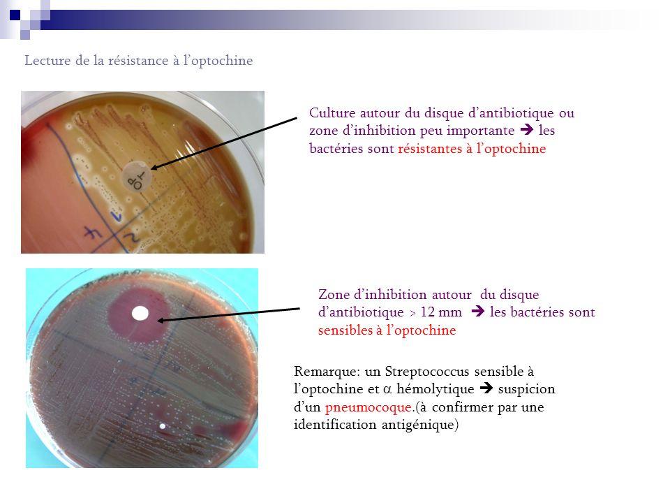 Lecture de la résistance à loptochine Culture autour du disque dantibiotique ou zone dinhibition peu importante les bactéries sont résistantes à l optochine Zone d inhibition autour du disque d antibiotique > 12 mm les bactéries sont sensibles à l optochine Remarque: un Streptococcus sensible à l optochine et hémolytique suspicion d un pneumocoque.(à confirmer par une identification antigénique)