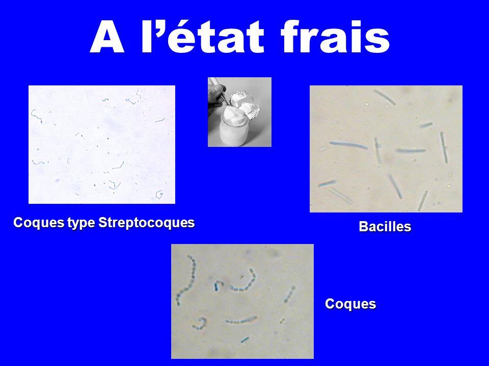 Au Bleu de Méthylène Lactobacillus Bulgariticus Streptococcus thermophilus