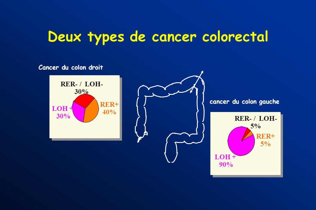 Deux types de cancer colique Tumeur MSI + (15%) - diploide - Pas de perte allélique sur 17p, 18q, 5q - mutations rares des gènes APC et p53 - altérati