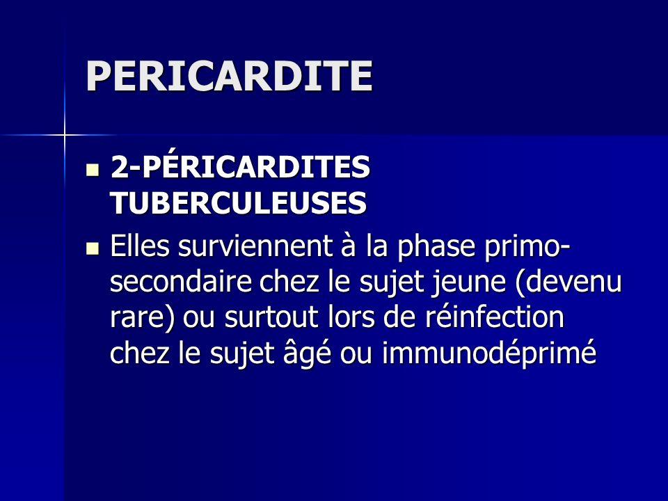 PERICARDITE 2-PÉRICARDITES TUBERCULEUSES 2-PÉRICARDITES TUBERCULEUSES Elles surviennent à la phase primo- secondaire chez le sujet jeune (devenu rare)