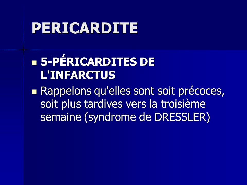 PERICARDITE 5-PÉRICARDITES DE L'INFARCTUS 5-PÉRICARDITES DE L'INFARCTUS Rappelons qu'elles sont soit précoces, soit plus tardives vers la troisième se