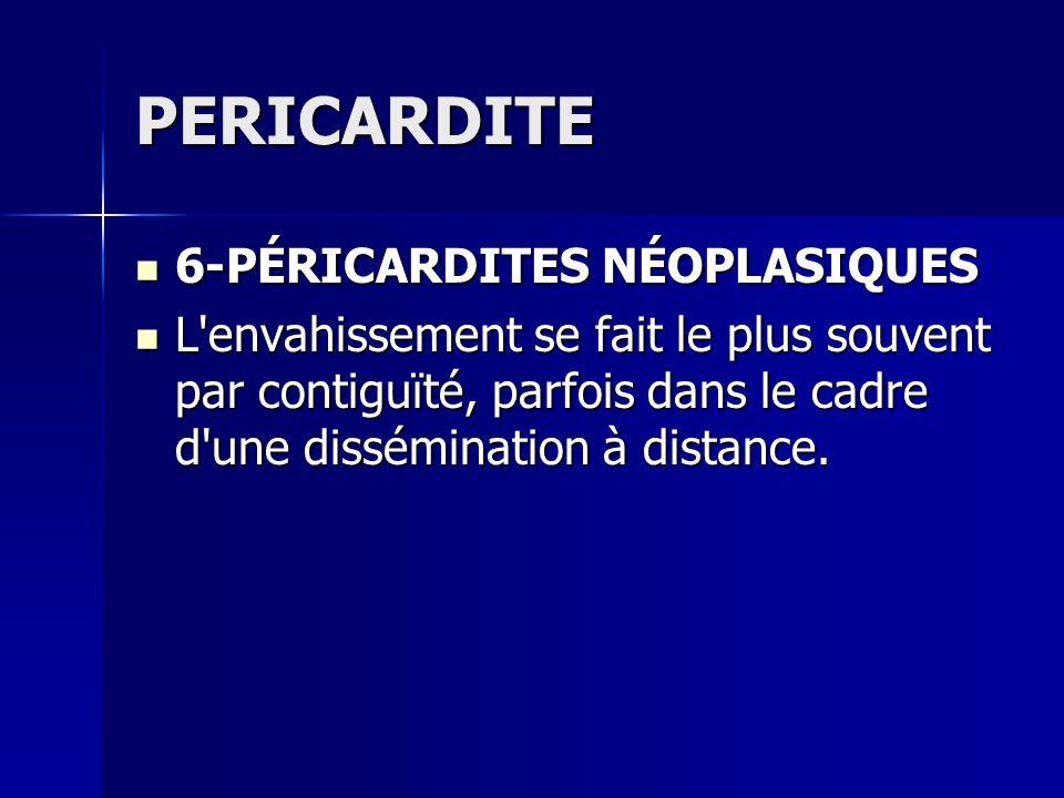 PERICARDITE 6-PÉRICARDITES NÉOPLASIQUES 6-PÉRICARDITES NÉOPLASIQUES L'envahissement se fait le plus souvent par contiguïté, parfois dans le cadre d'un