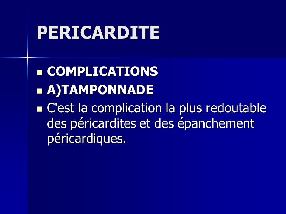 PERICARDITE COMPLICATIONS COMPLICATIONS A)TAMPONNADE A)TAMPONNADE C'est la complication la plus redoutable des péricardites et des épanchement péricar