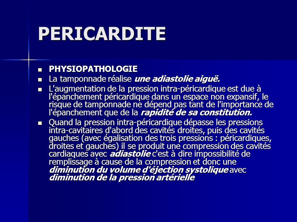 PERICARDITE PHYSIOPATHOLOGIE PHYSIOPATHOLOGIE La tamponnade réalise une adiastolie aiguë. La tamponnade réalise une adiastolie aiguë. L'augmentation d
