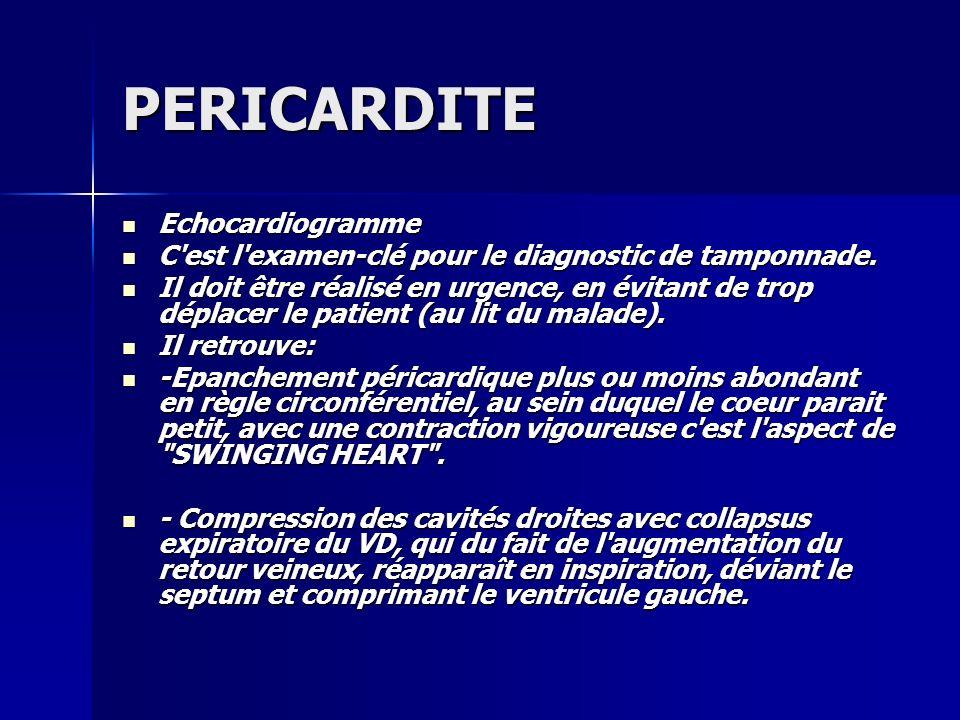 PERICARDITE Echocardiogramme Echocardiogramme C'est l'examen-clé pour le diagnostic de tamponnade. C'est l'examen-clé pour le diagnostic de tamponnade