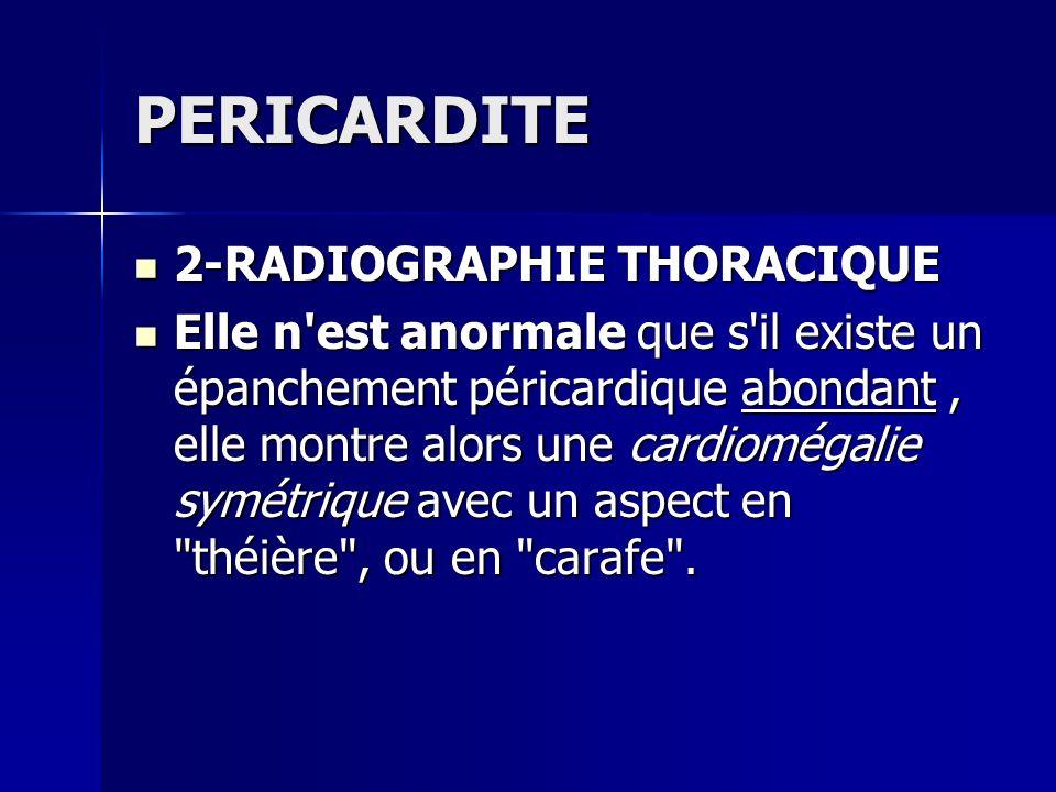 PERICARDITE 2-RADIOGRAPHIE THORACIQUE 2-RADIOGRAPHIE THORACIQUE Elle n'est anormale que s'il existe un épanchement péricardique abondant, elle montre