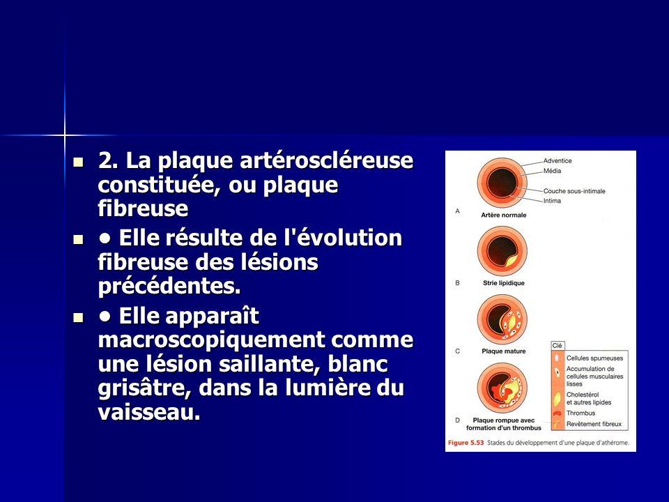 2. La plaque artéroscléreuse constituée, ou plaque fibreuse 2. La plaque artéroscléreuse constituée, ou plaque fibreuse Elle résulte de l'évolution fi