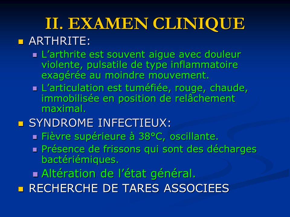 II. EXAMEN CLINIQUE ARTHRITE: ARTHRITE: Larthrite est souvent aigue avec douleur violente, pulsatile de type inflammatoire exagérée au moindre mouveme